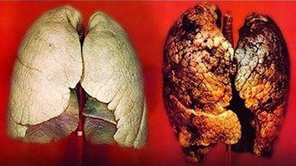 Xét nghiệm máu có thể giúp phát hiện sớm được bệnh ung thư phổi?