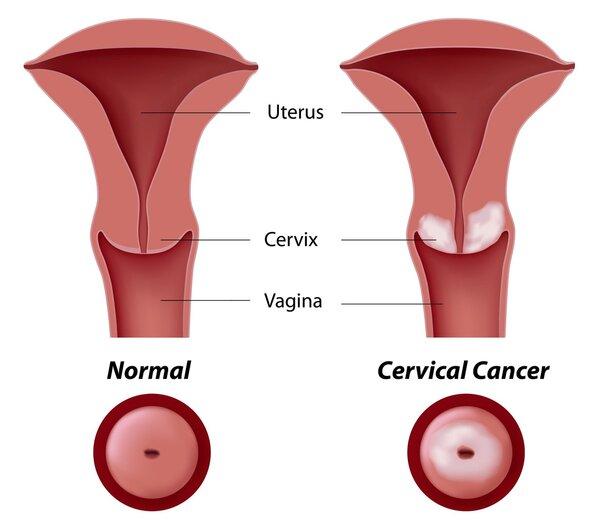 Ung thư cổ tử cung