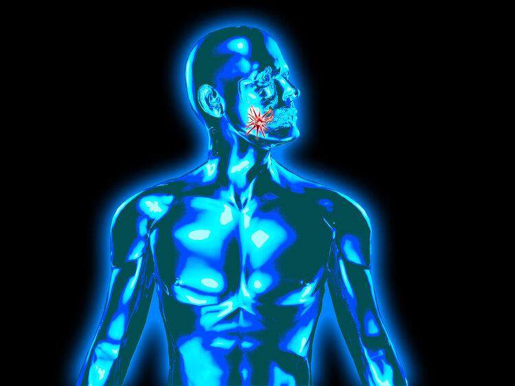 Ung thư lưỡi 2