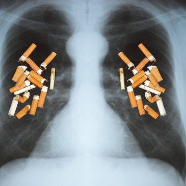 Nếu không có thuốc lá, ung thư phổi sẽ là một bệnh ung thư hiếm gặp