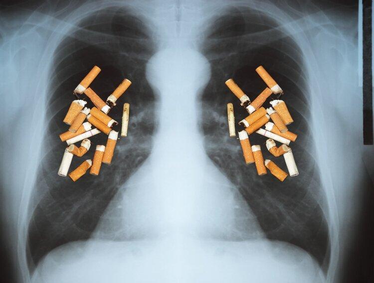 ung thu phổi