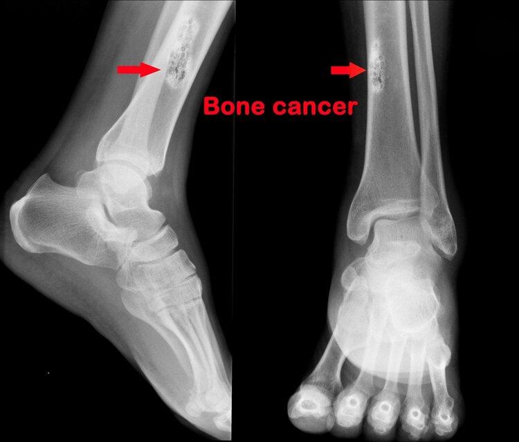 Ung thư xương 1